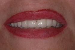 Aspect du sourire après traitement