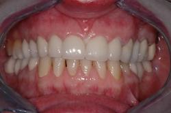 Excellente intégration esthétique des 4 dents